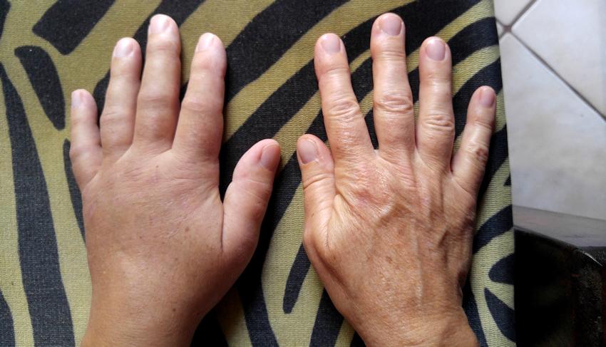 CRPS-Syndrom nach meiner Ellenbogenluxationsfraktur
