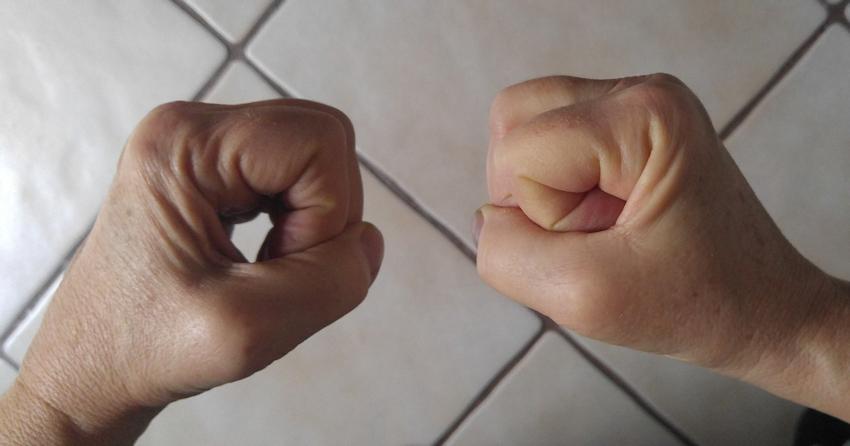 CRPS – Syndrom: springt es von einer Hand zur anderen?